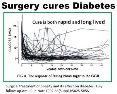 SurgeryCuresDiabetes2
