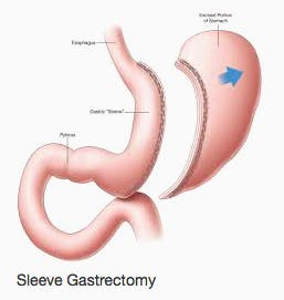 sleeve-gastrorectomy