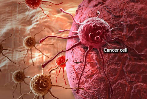 cancer-101-s1-what-is-cancer-cell-e1491583835843