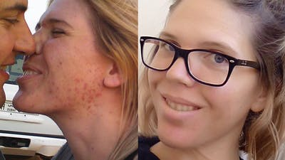 """A combination of LCHF and paleo healed my skin"""