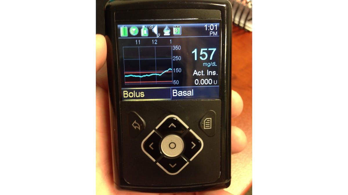 Diabetes – a disease of glucose intolerance