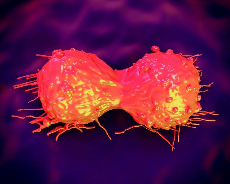 cancer cell, SEM of Cervical Carcinoma