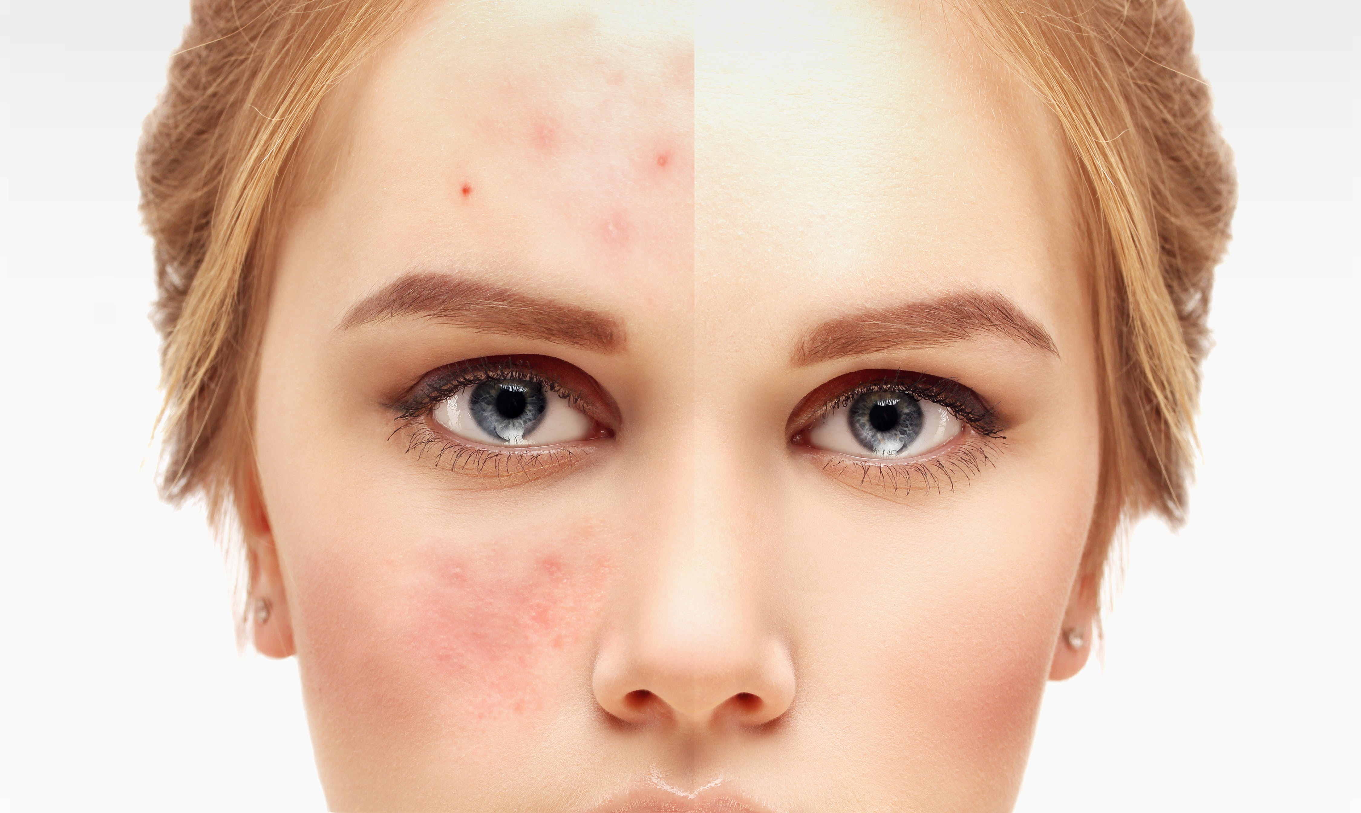 Can keto or low-carb diets cure acne?