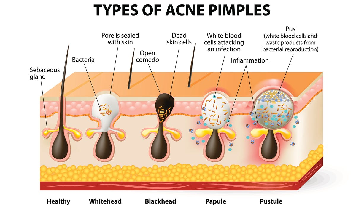 low carb diet and pimples