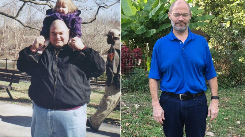 The keto diet: Maintaining a 150-pound loss for 10 years