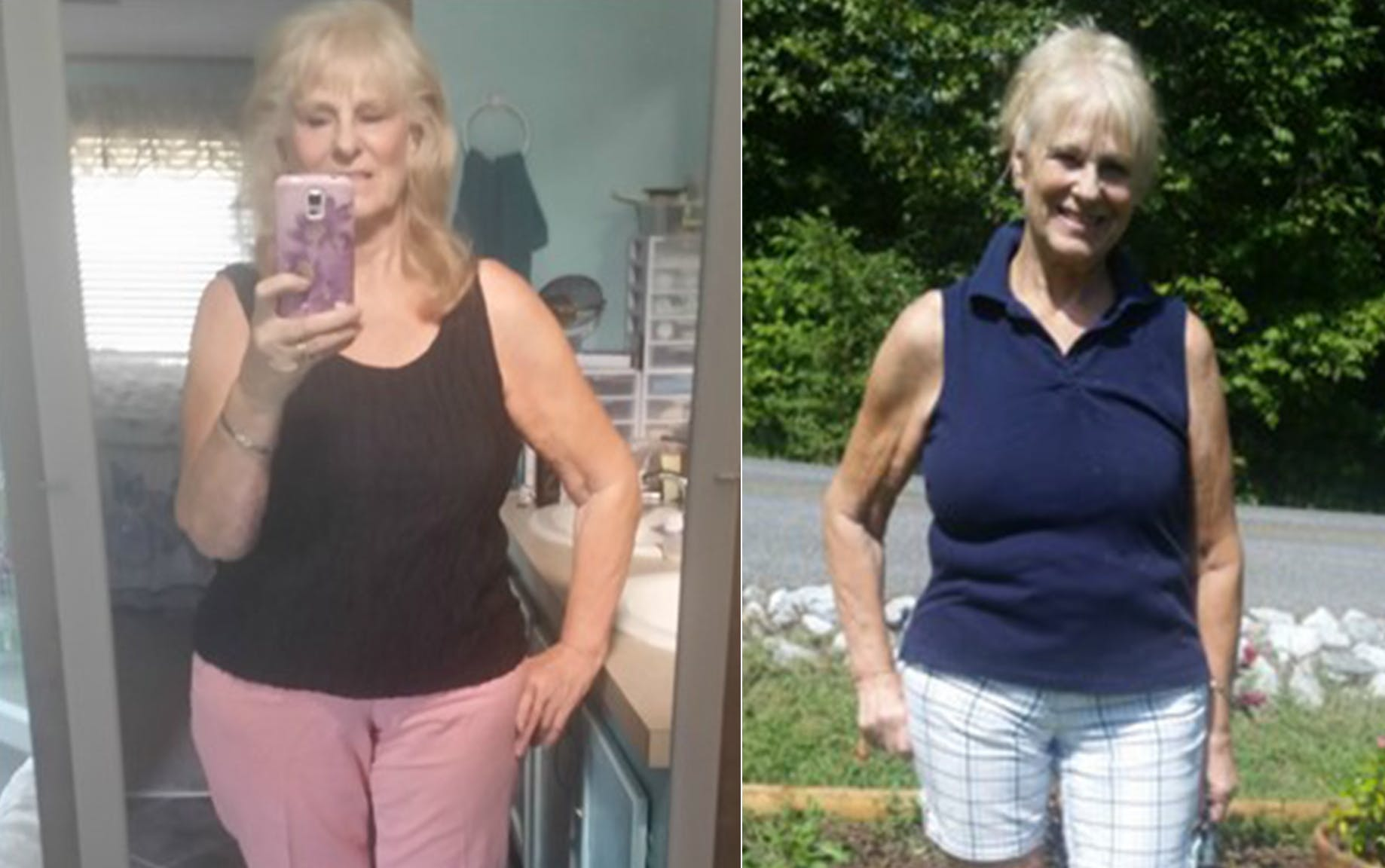 "The keto diet: ""It just shows that no matter your age, you can lose weight and keep it off"""