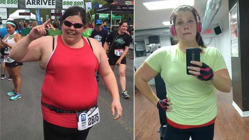 """I had been trying to lose weight since the age of 9. And they told me all that I had left was bariatric surgery"""
