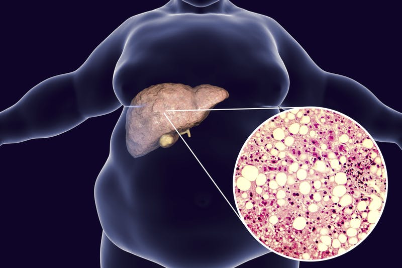 Groundbreaking study: low carb is an effective treatment for fatty liver