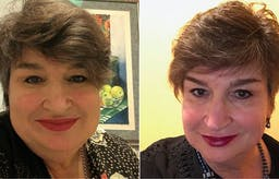 62 pounds lost and migraines greatly improved on 1-year low-carb anniversary
