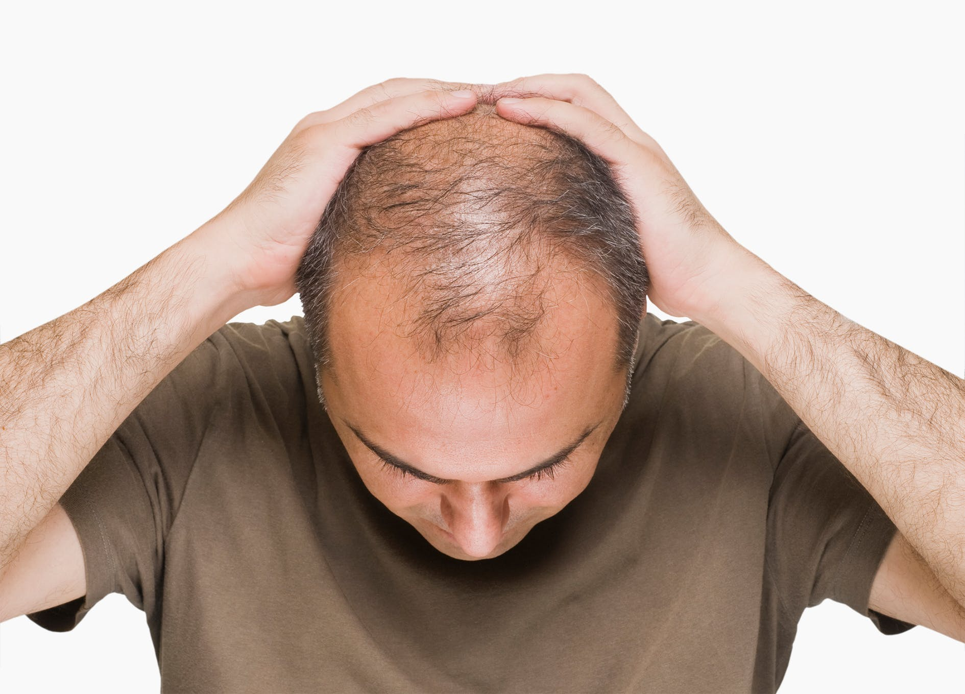 Male pattern baldness and insulin