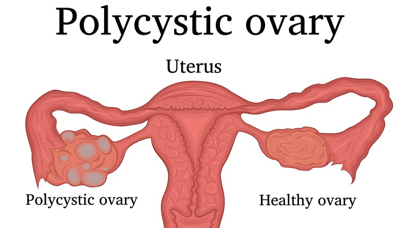 Illustration of Polycystic ovary