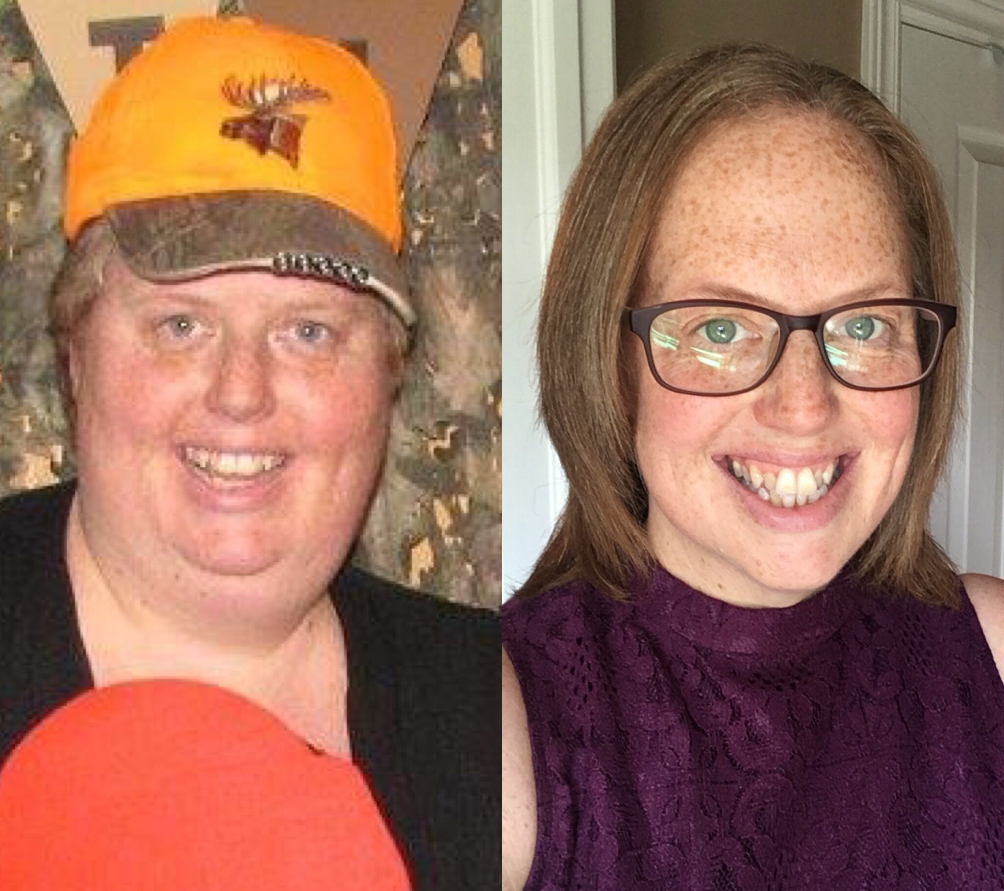 Stephanie close up before nad after