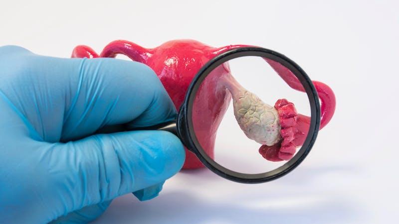 Rechercher la maladie, les anomalies ou la pathologie de la photo concept ovarienne. Médecin tenant une loupe et examine le modèle des ovaires, effectuant des diagnostics pour des maladies comme le cancer, l'apoplexie, le kyste, la POS
