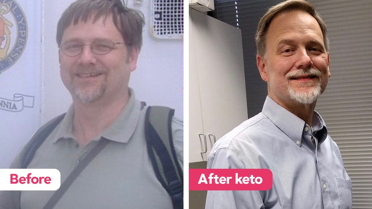 A ketogenic diet and brain cancer
