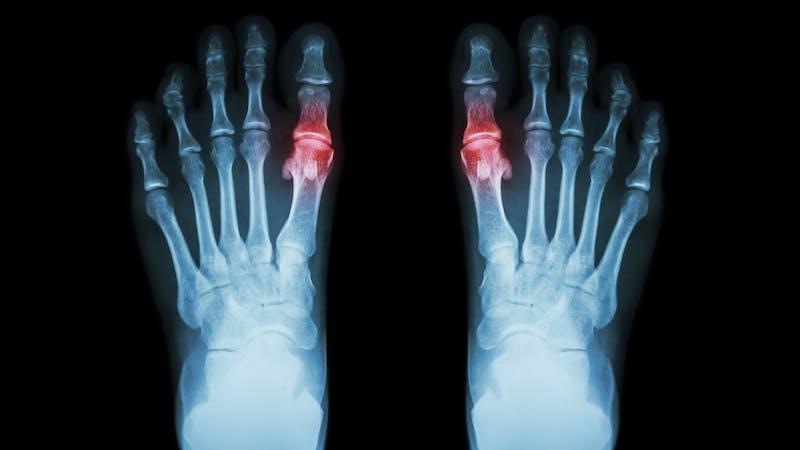 Gout , Rheumatoid arthritis