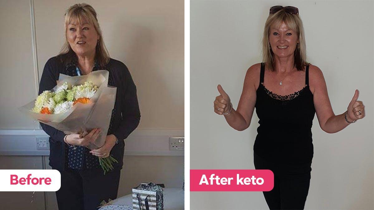 Debra success story