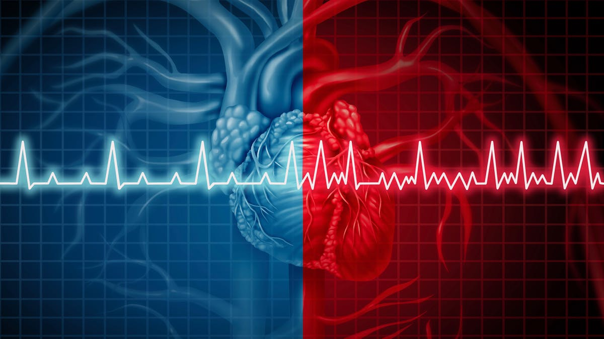 Inaccurate news stories suggest low carb causes atrial fibrillation
