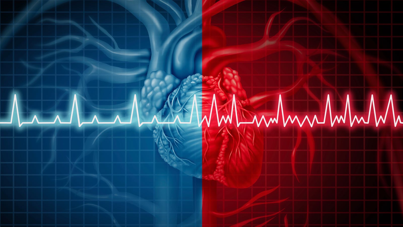 stopping keto diet and tachycardia