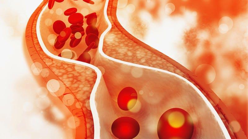 Plaque de cholestérol dans l'artère