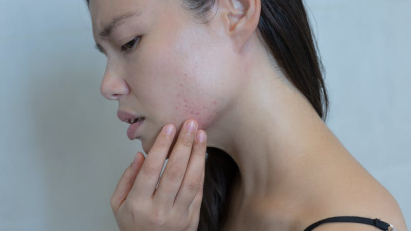 Stressed woman breaking out with acne on her face.