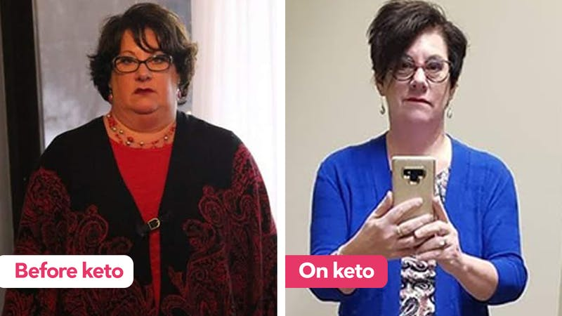 ruth-before-after