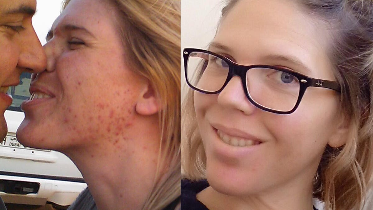 """""""A combination of LCHF and paleo healed my skin"""""""