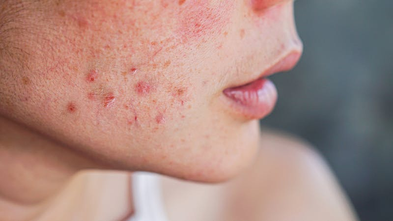 acne on woman's face with rash skin ,scar and spot that allergic to cosmetics