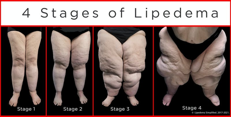 Four stages of lipedema